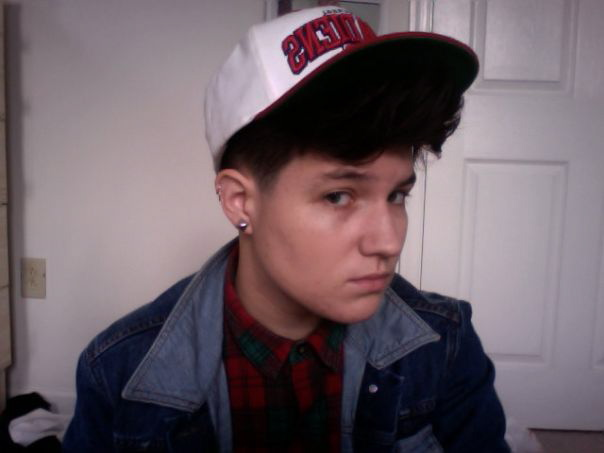 The author in 2013, after 6 months on vitamin treatment. No foundation, no cover-up, no nothin'.