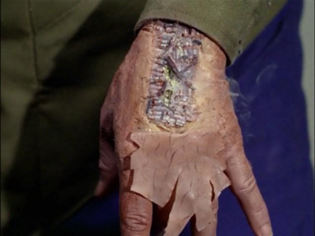 A mere flesh wound.