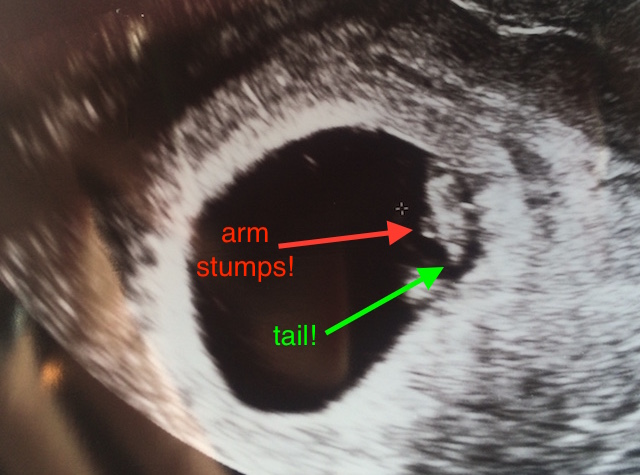Seven week viability ultrasound confirmed I'm harboring a little creature!