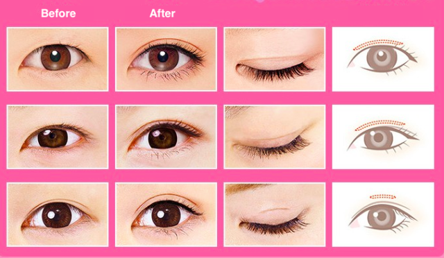 advertisement for eyelid tape in Taiwan
