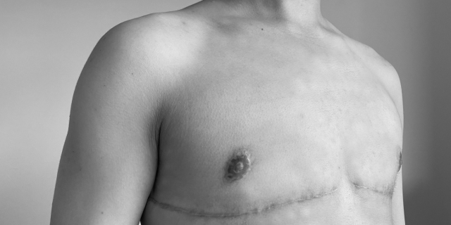 a black and white photo of a person's chest and thin lines of scars beneath their nipples let behind after top surgery